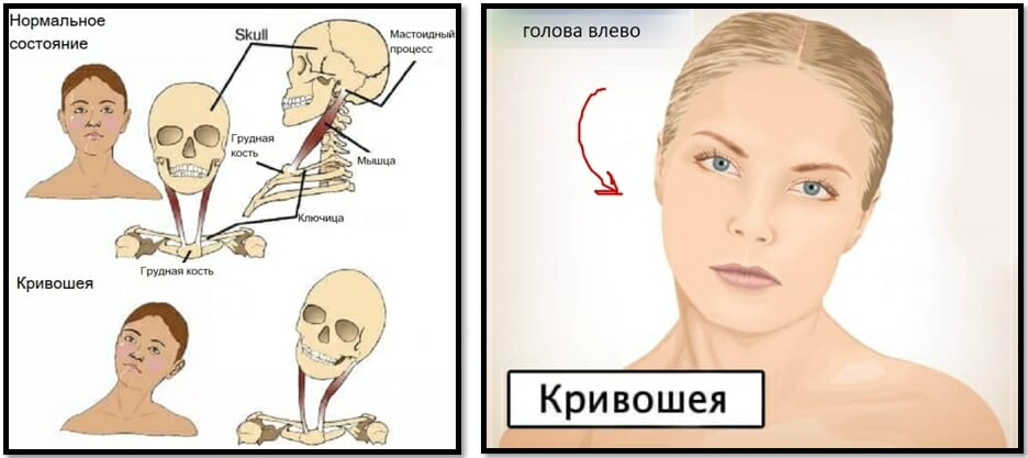 спастическая кривошея мышечный спазм