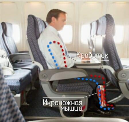 тромбоз вен ног сидя в кресле самолета
