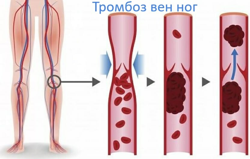 тромбоз вен ног
